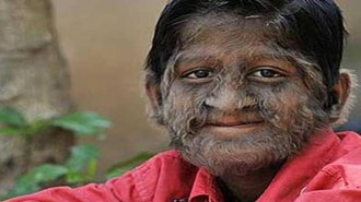 human werewolf syndrome
